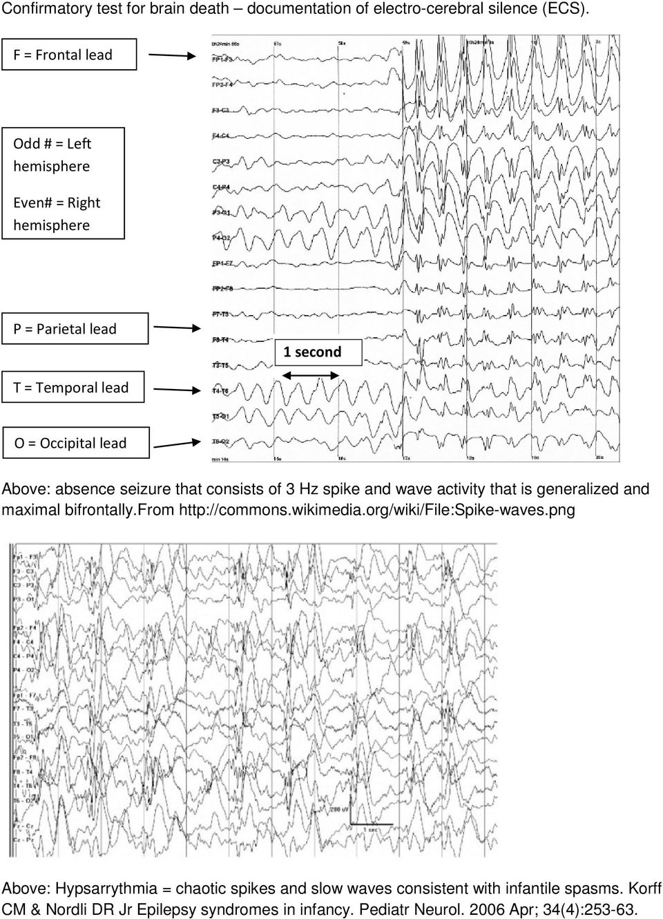 absence seizure that consists of 3 Hz spike and wave activity that is generalized and maximal bifrontally.from http://commons.wikimedia.