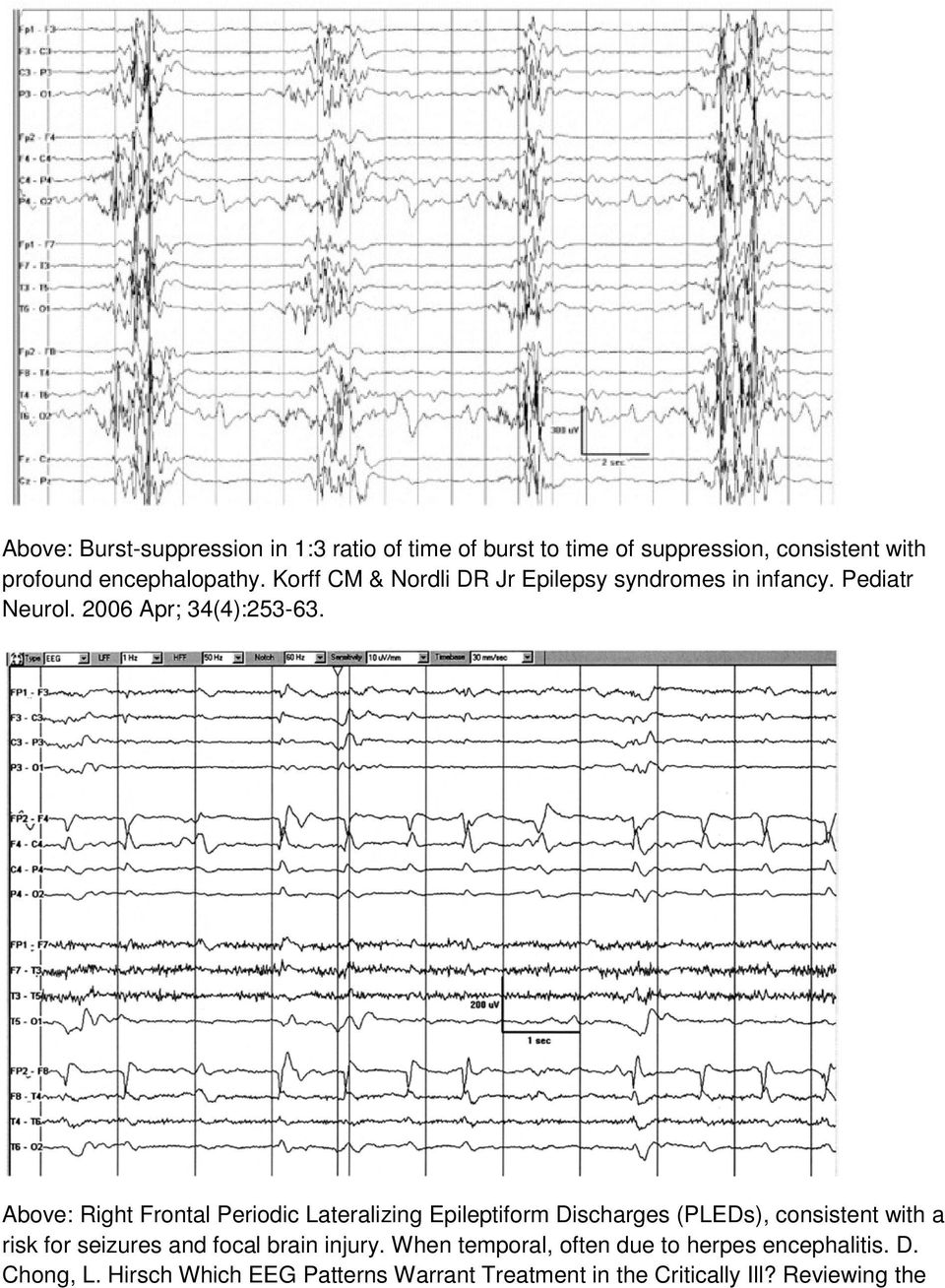 Above: Right Frontal Periodic Lateralizing Epileptiform Discharges (PLEDs), consistent with a risk for seizures and focal