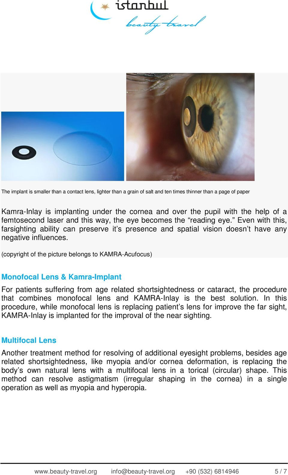 (copyright of the picture belongs to KAMRA-Acufocus) Monofocal Lens & Kamra-Implant For patients suffering from age related shortsightedness or cataract, the procedure that combines monofocal lens