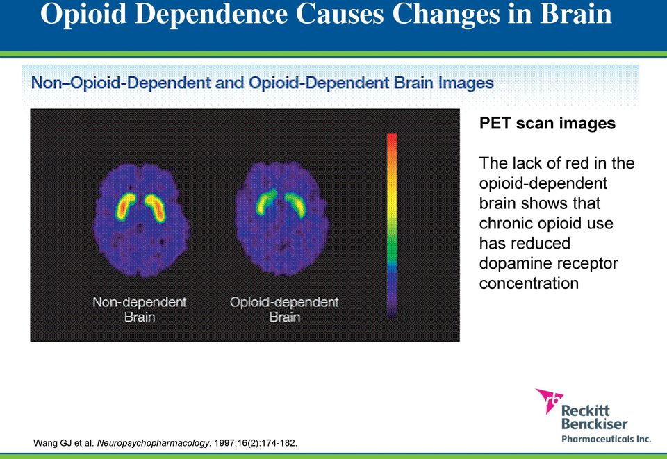 chronic opioid use has reduced dopamine receptor