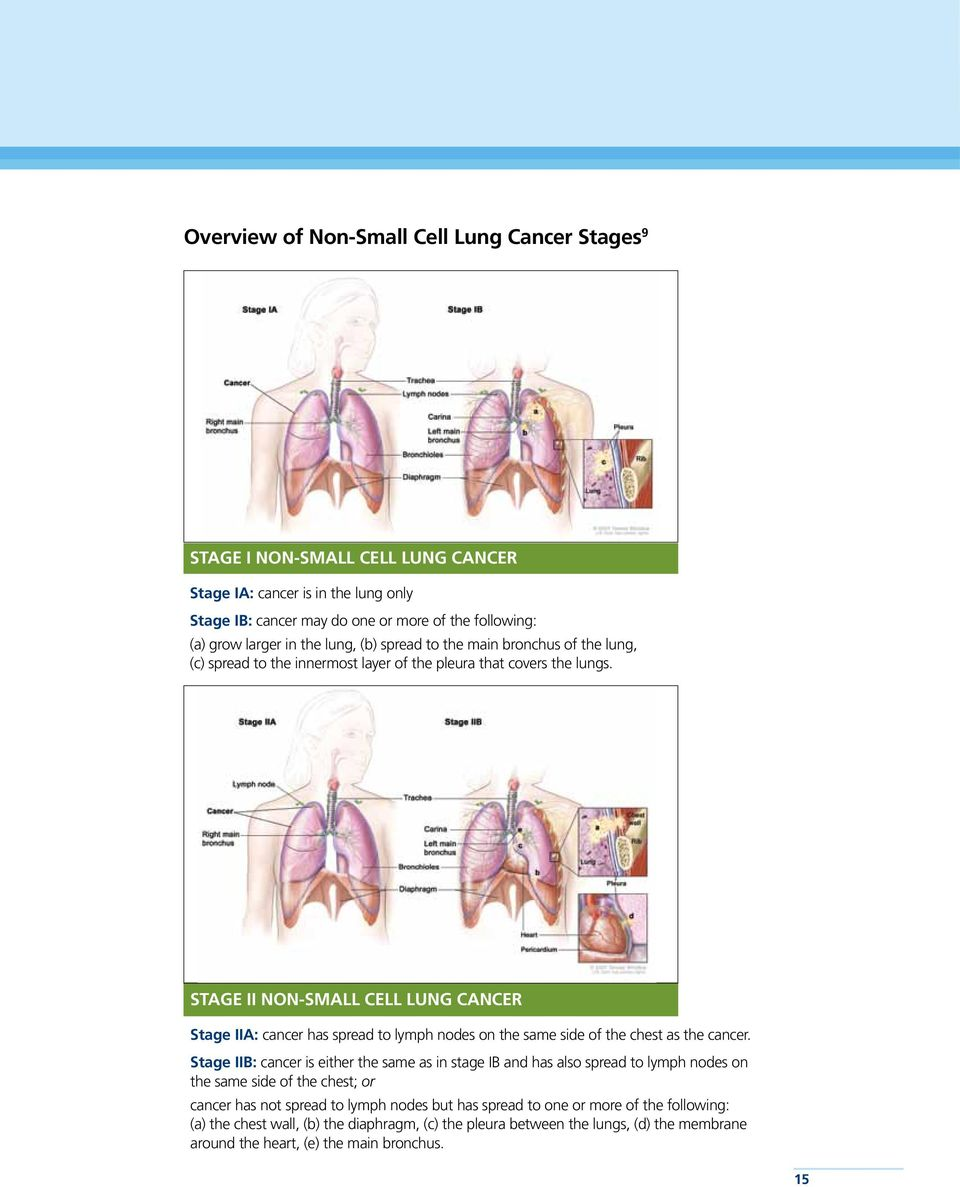 Stage II Non-Small Cell Lung Cancer Stage IIA: cancer has spread to lymph nodes on the same side of the chest as the cancer.