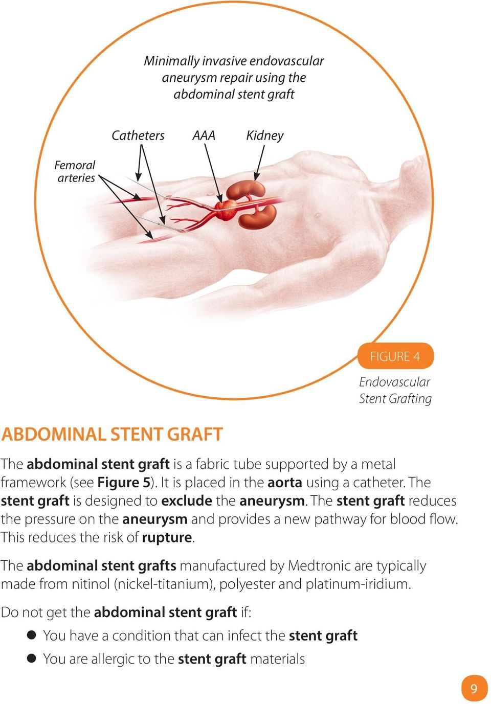 The stent graft reduces the pressure on the aneurysm and provides a new pathway for blood flow. This reduces the risk of rupture.