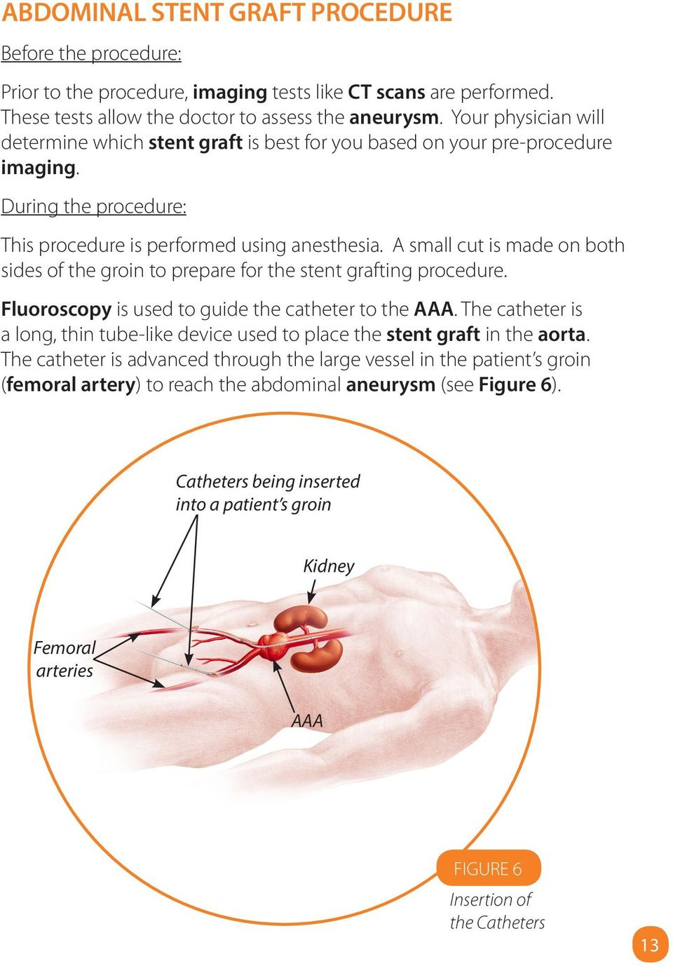 A small cut is made on both sides of the groin to prepare for the stent grafting procedure. Fluoroscopy is used to guide the catheter to the AAA.