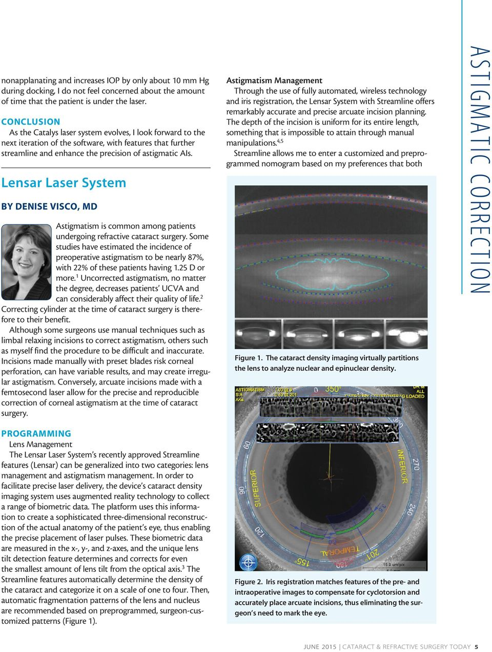 Lensar Laser System BY DENISE VISCO, MD Astigmatism is common among patients undergoing refractive cataract surgery.