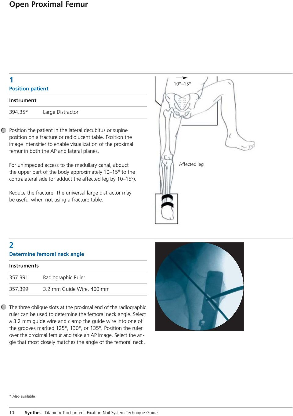 For unimpeded access to the medullary canal, abduct the upper part of the body approximately 10 15 to the contralateral side (or adduct the affected leg by 10 15 ). Affected leg Reduce the fracture.