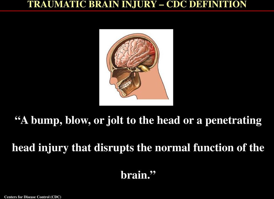 head injury that disrupts the normal function