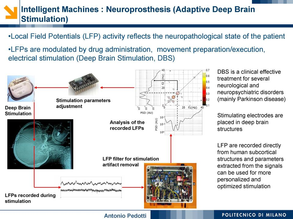 is a clinical effective treatment for several neurological and neuropsychiatric disorders (mainly Parkinson disease) Stimulating electrodes are placed in deep brain structures LFPs recorded during