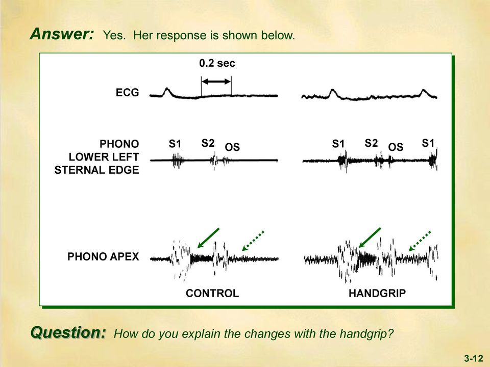 S2 OS S1 PHONO APEX CONTROL HANDGRIP Question: