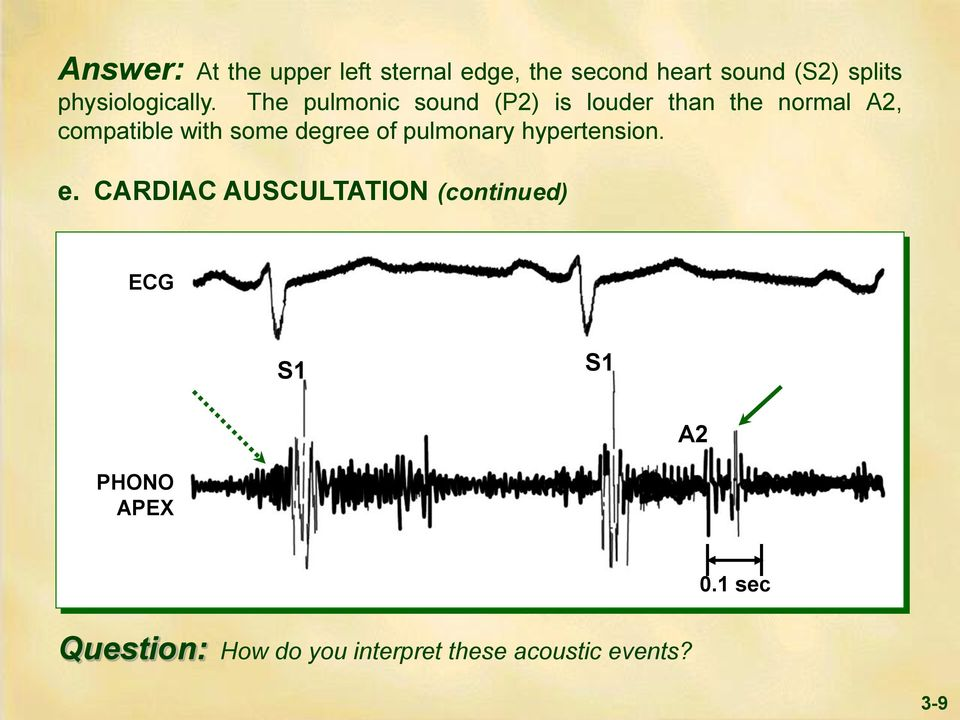 The pulmonic sound (P2) is louder than the normal A2, compatible with some degree