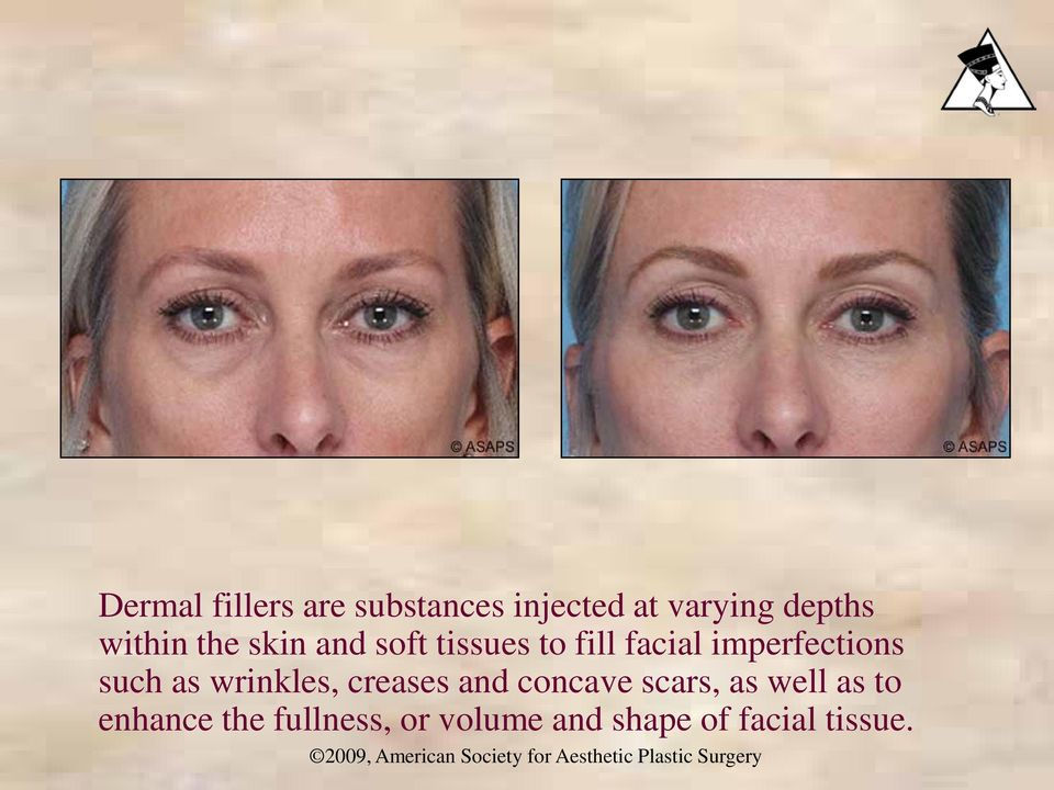 imperfections such as wrinkles, creases and concave scars,