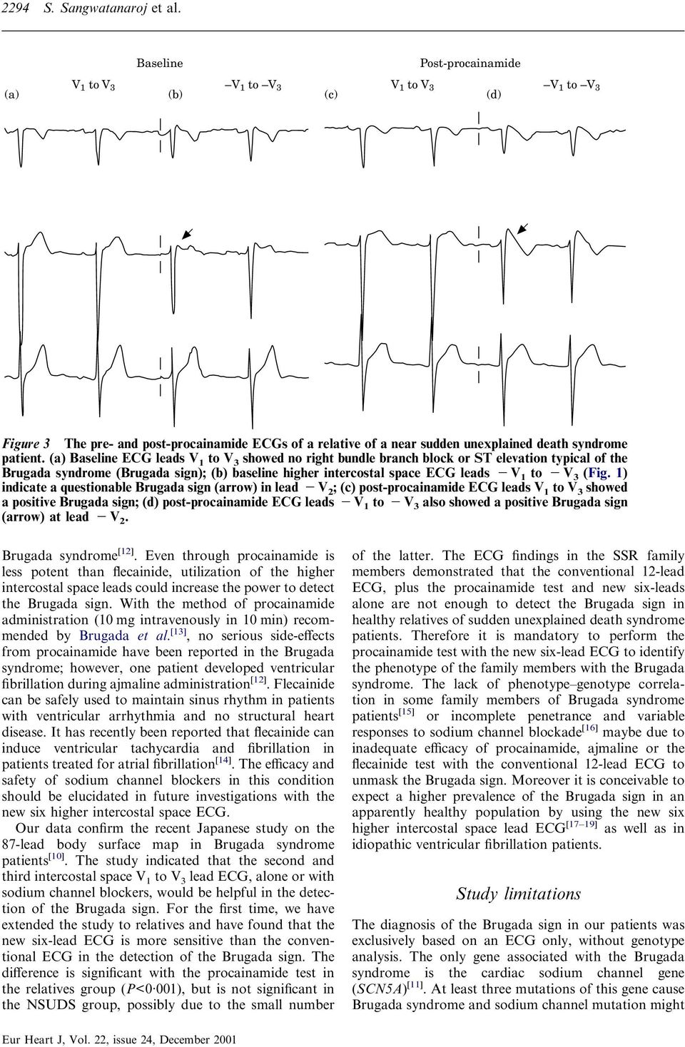 (a) Baseline ECG leads V to V 3 showed no right bundle branch block or ST elevation typical of the Brugada syndrome (); (b) baseline higher intercostal space ECG leads V to V 3 (Fig.
