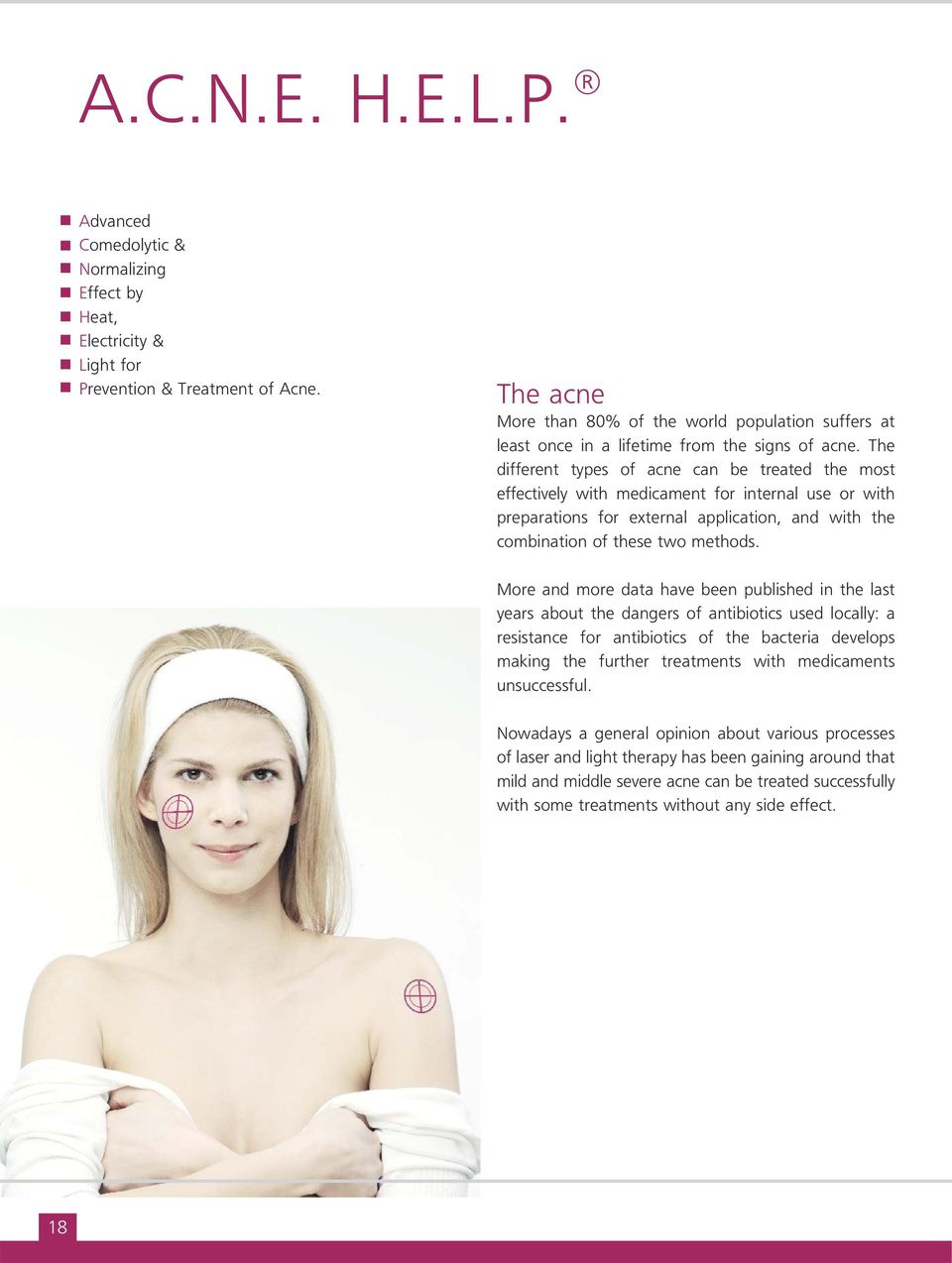 The different types of acne can be treated the most effectively with medicament for internal use or with preparations for external application, and with the combination of these two methods.