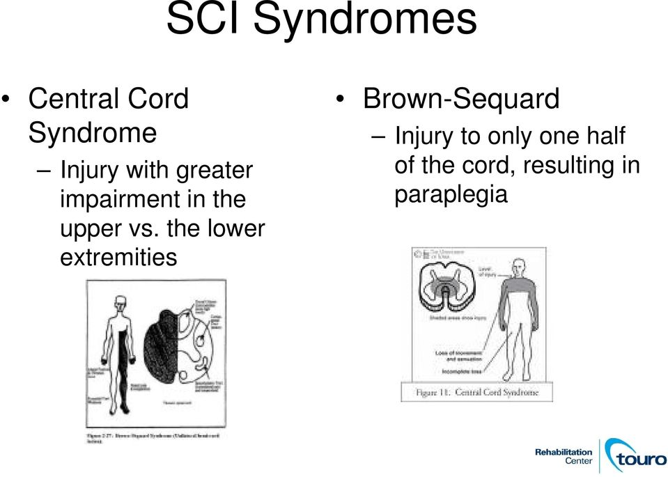 the lower extremities Brown-Sequard Injury