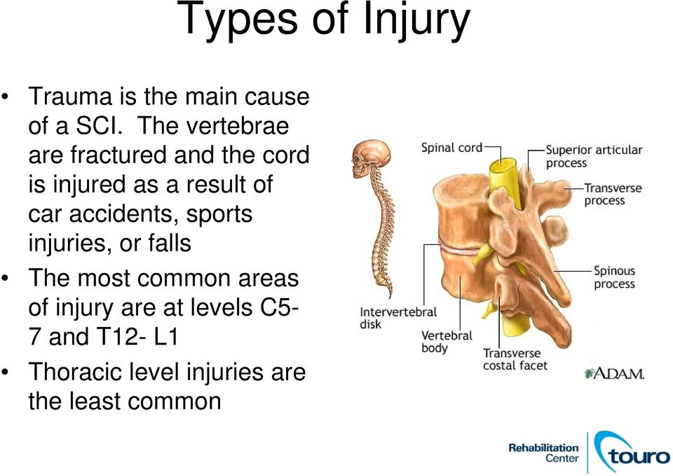 car accidents, sports injuries, or falls The most common areas of