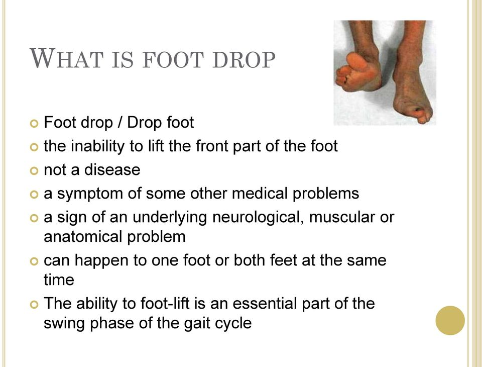 neurological, muscular or anatomical problem can happen to one foot or both feet at