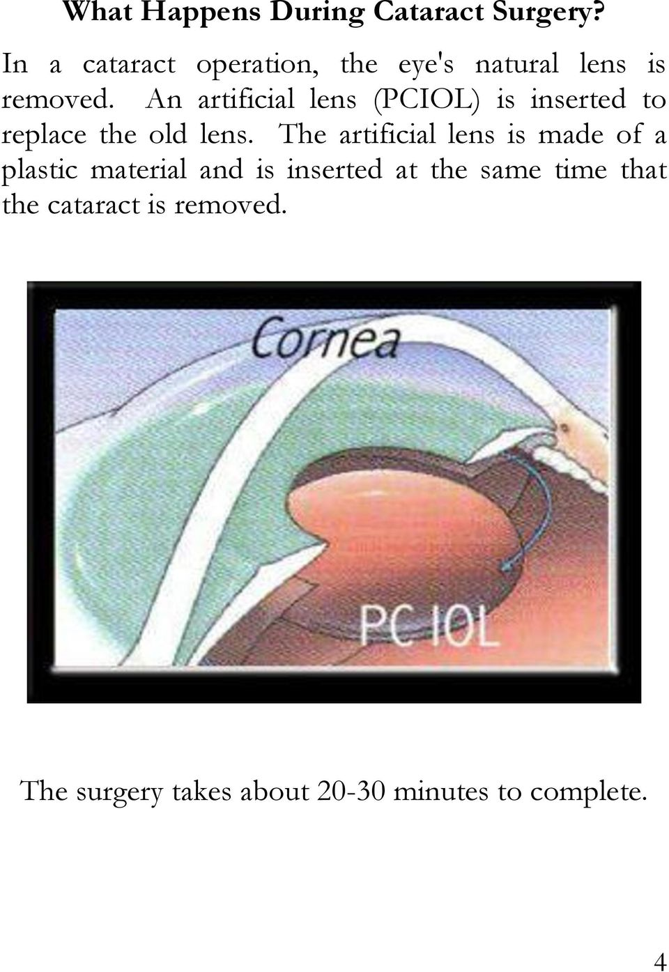 An artificial lens (PCIOL) is inserted to replace the old lens.