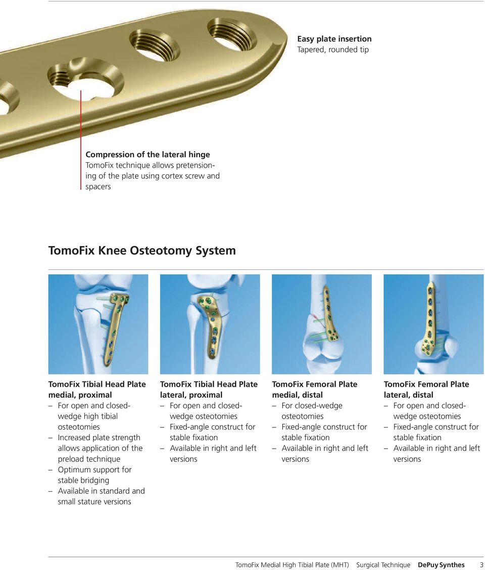 in standard and small stature versions TomoFix Tibial Head Plate lateral, proximal For open and closedwedge osteotomies Fixed-angle construct for stable fixation Available in right and left versions
