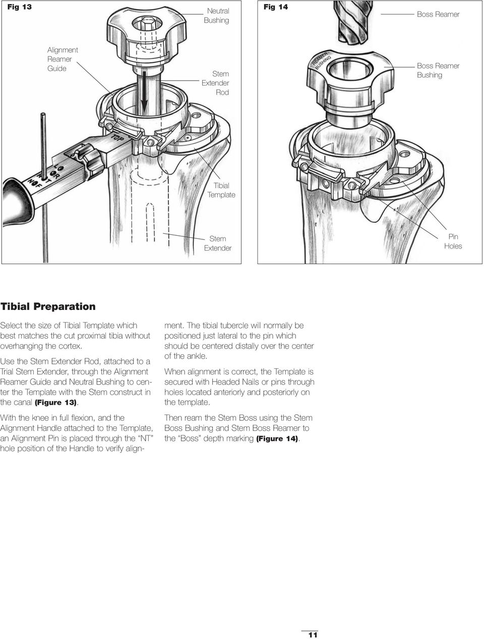 Use the Stem Extender Rod, attached to a Trial Stem Extender, through the Alignment Reamer Guide and Neutral Bushing to center the Template with the Stem construct in the canal (Figure 13).
