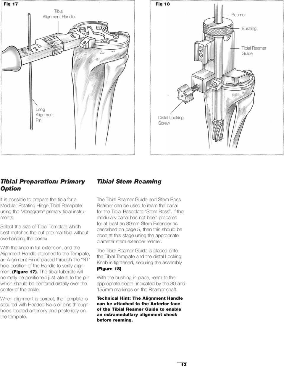 With the knee in full extension, and the Alignment Handle attached to the Template, an Alignment Pin is placed through the NT hole position of the Handle to verify alignment (Figure 17).