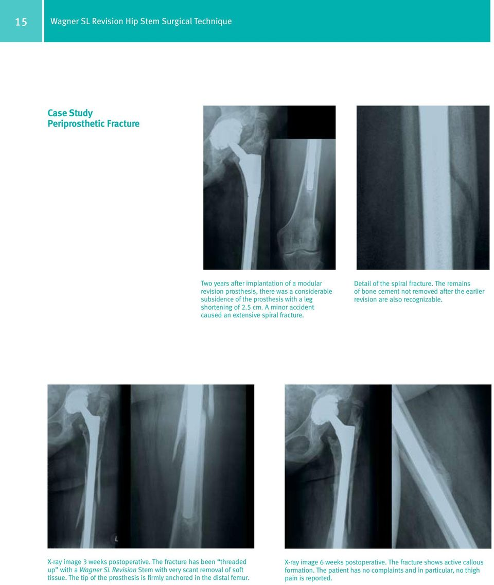 The remains of bone cement not removed after the earlier revision are also recognizable. X-ray image 3 weeks postoperative.