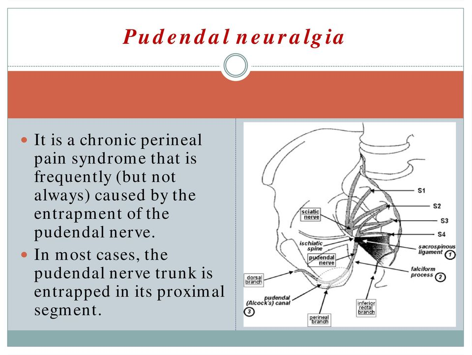 the entrapment of the pudendal nerve.