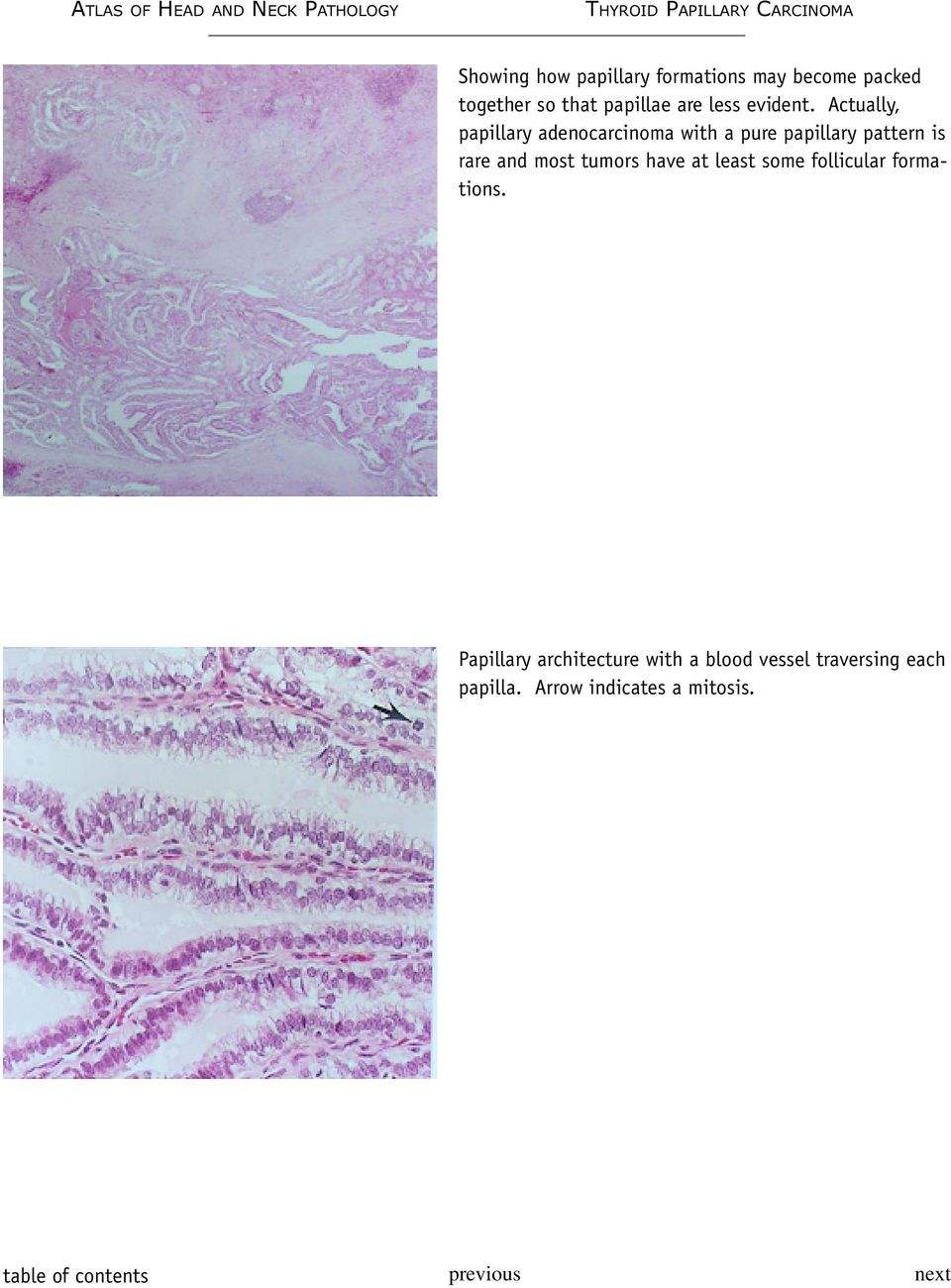 Actually, papillary adenocarcinoma with a pure papillary pattern is rare and