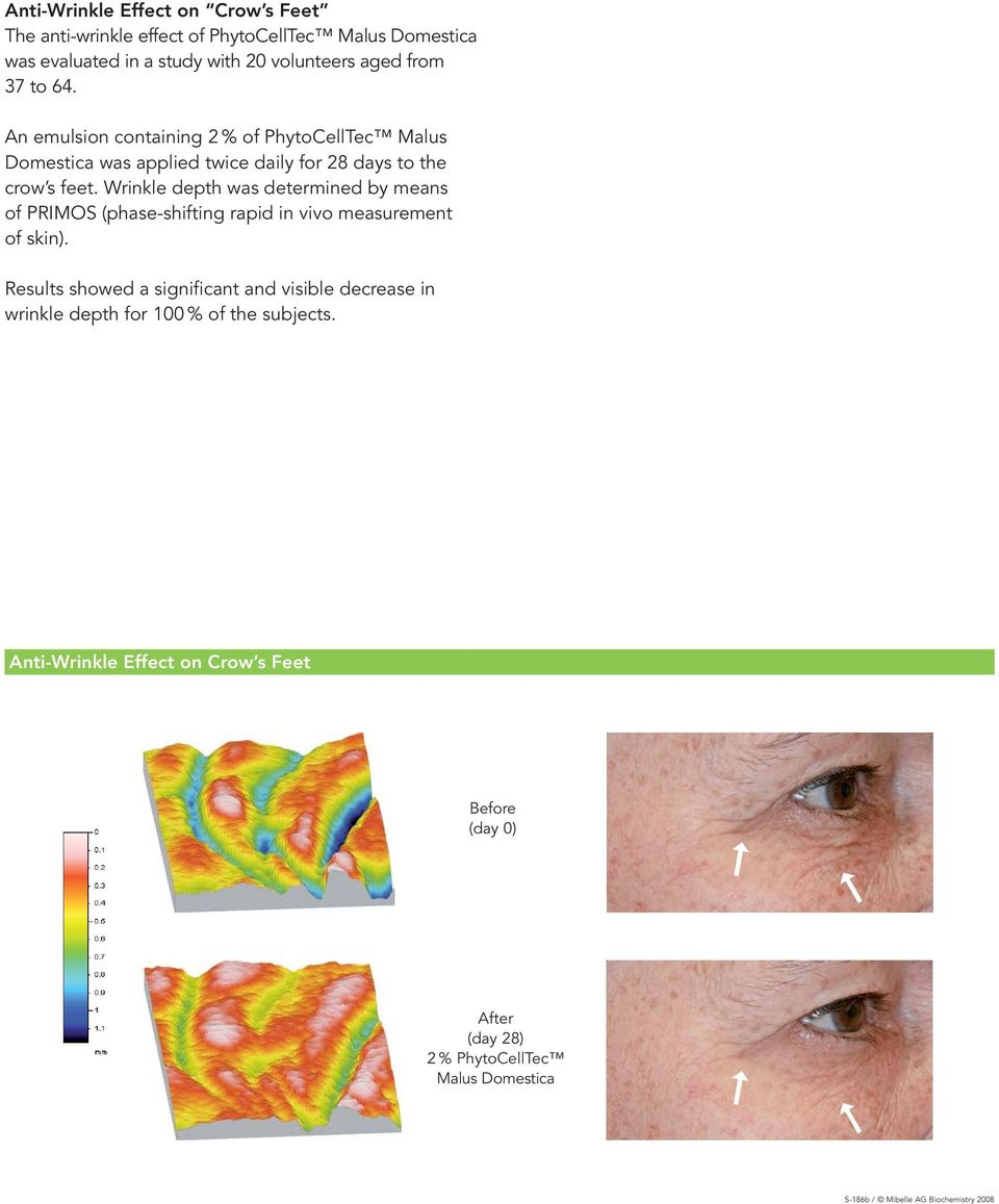Wrinkle depth was determined by means of PRIMOS (phase-shifting rapid in vivo measurement of skin).