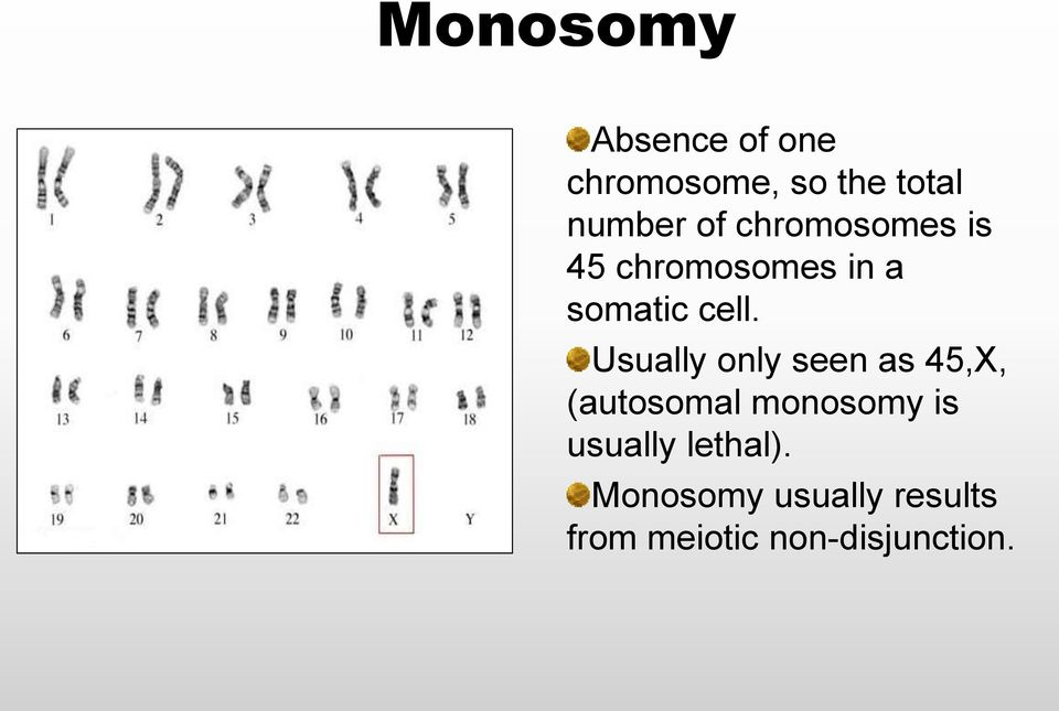 Usually only seen as 45,X, (autosomal monosomy is usually