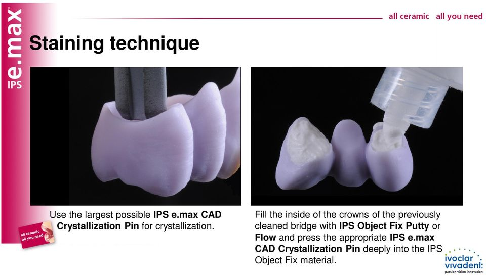 Fill the inside of the crowns of the previously cleaned bridge with IPS
