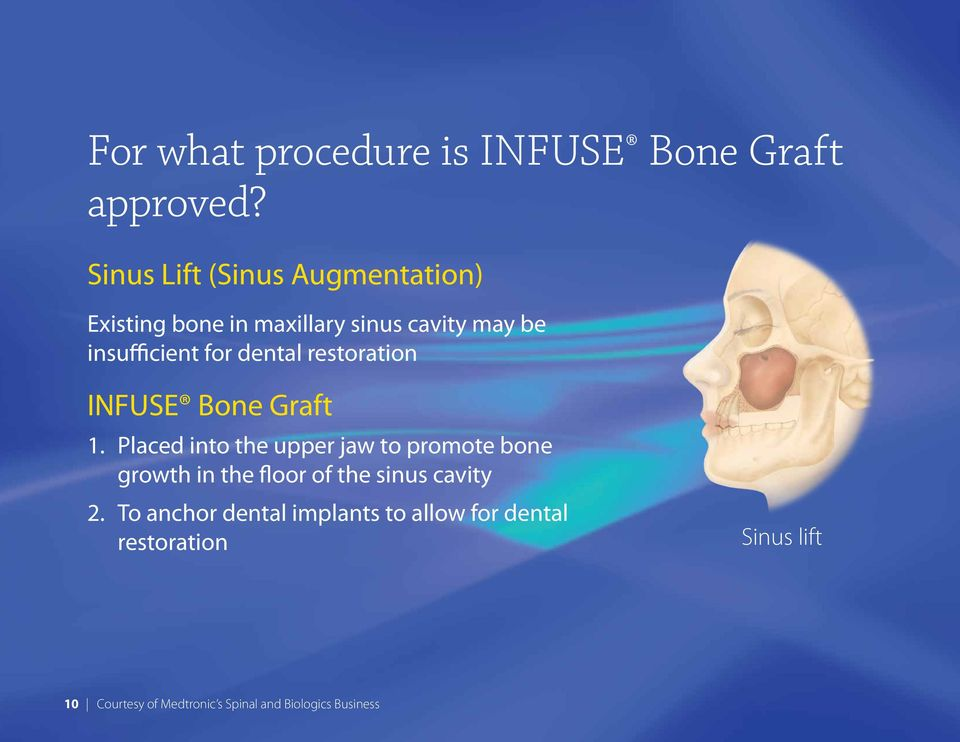 dental restoration INFUSE Bone Graft 1.