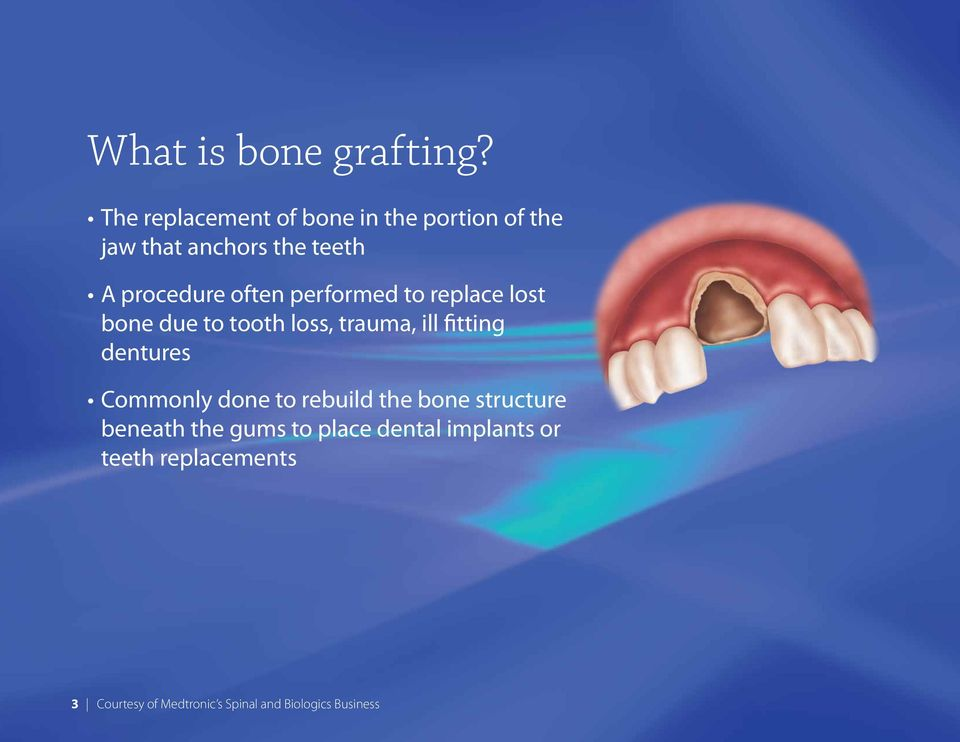 often performed to replace lost bone due to tooth loss, trauma, ill fitting dentures