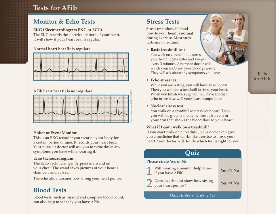 Normal heart beat (it is regular) AFib heart beat (it is not regular) Photos reused with permission by EKG CONCEPTS Basic treadmill test You walk on a treadmill to stress your heart.