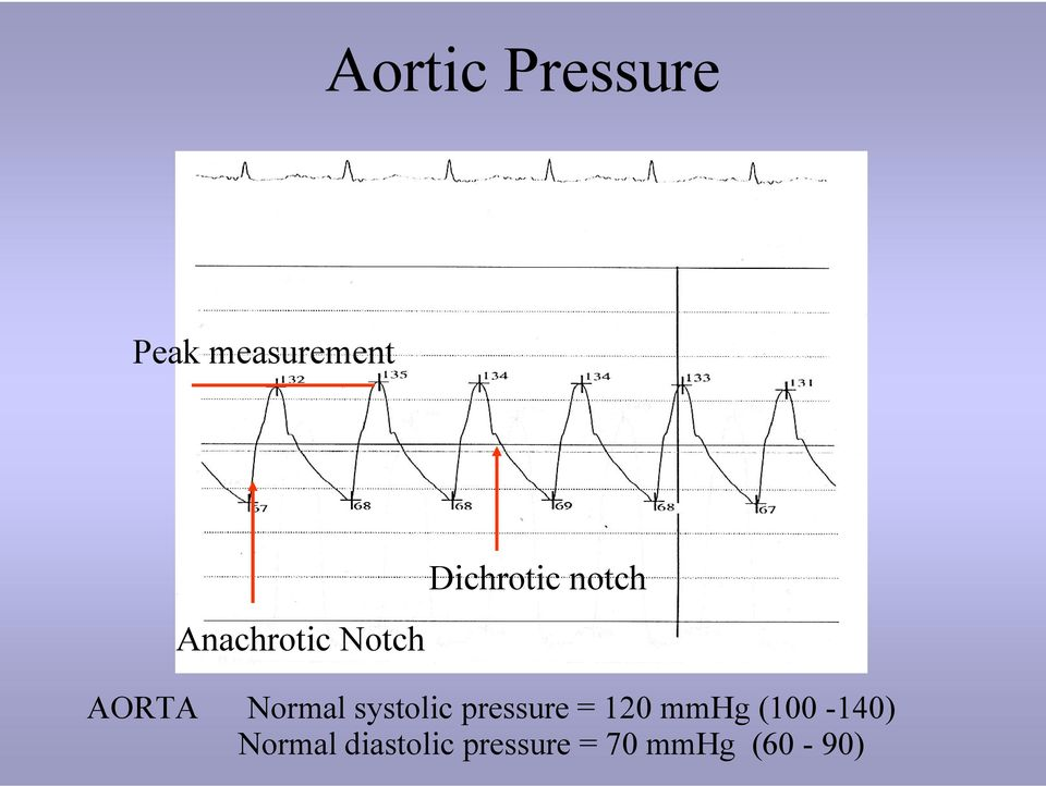 Normal systolic pressure = 120 mmhg