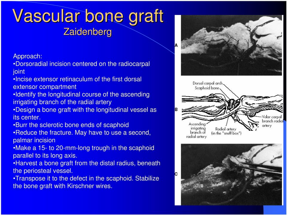 Burr the sclerotic bone ends of scaphoid Reduce the fracture.