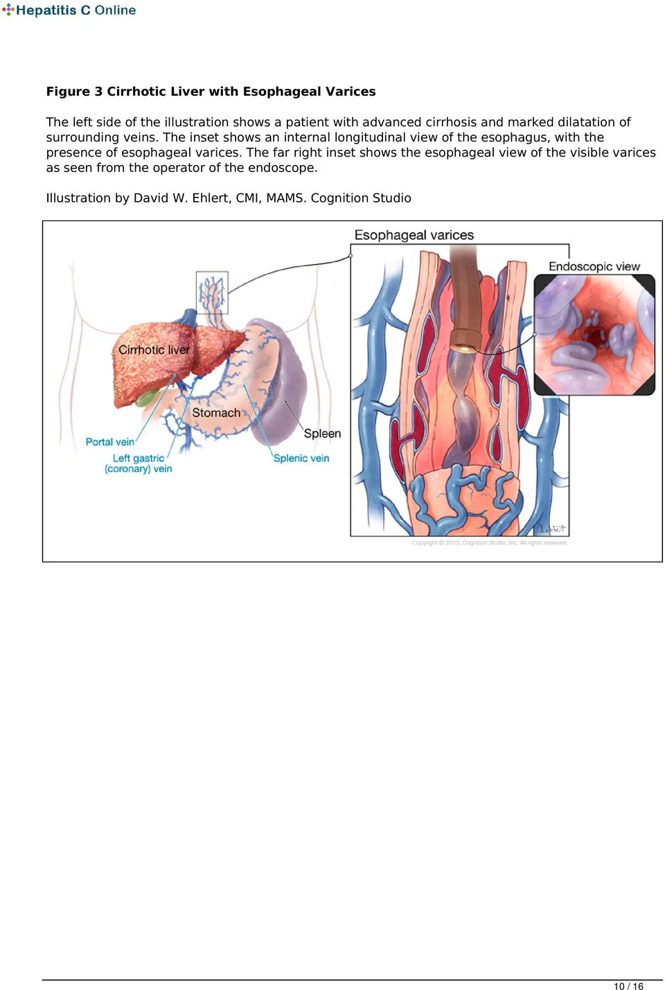 The inset shows an internal longitudinal view of the esophagus, with the presence of esophageal varices.