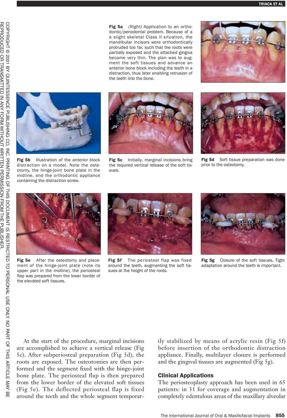 Fig 5a (Right) Application to an orthodontic/periodontal problem.