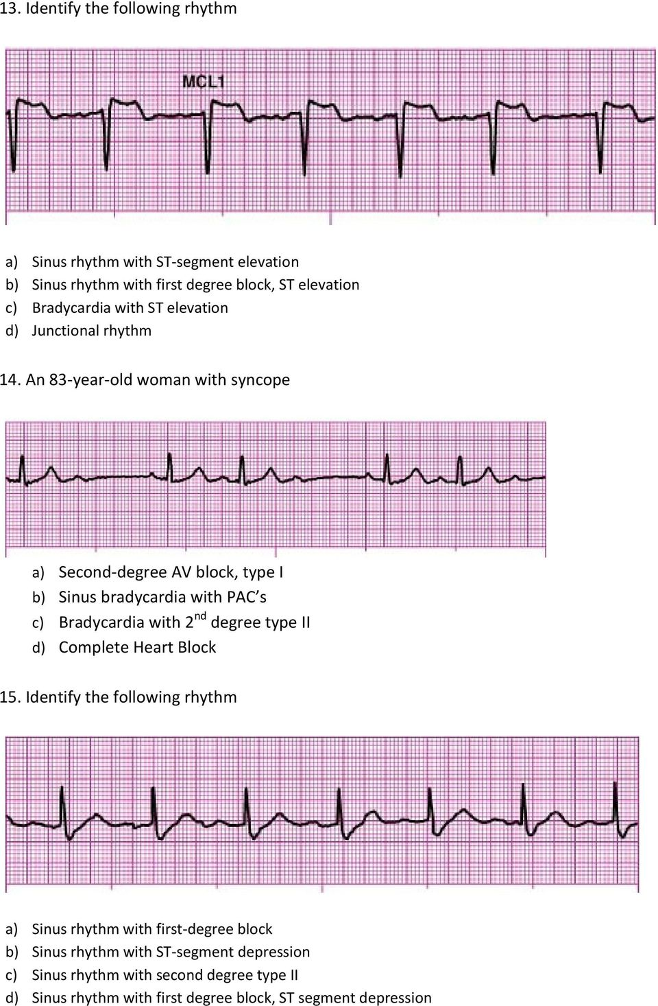An 83-year-old woman with syncope a) Second-degree AV block, type I b) Sinus bradycardia with PAC s c) Bradycardia with 2 nd degree type II d)