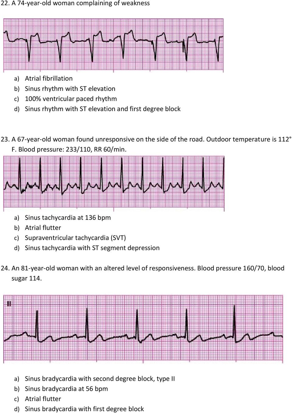 a) Sinus tachycardia at 136 bpm b) Atrial flutter c) Supraventricular tachycardia (SVT) d) Sinus tachycardia with ST segment depression 24.