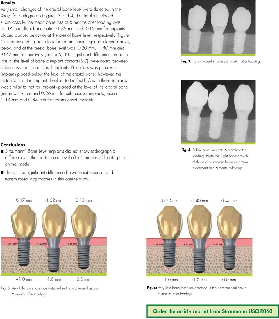 15 mm for implants placed above, below or at the crestal bone level, respectively (Figure 5). Corresponding bone loss for transmucosal implants placed above, below and at the crestal bone level was -.