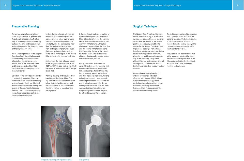 The first step in planning consists in selecting suitable implants for the acetabulum and the femur using the X-ray templates on the original X-ray films.