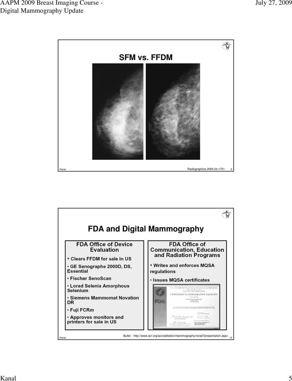 and Digital Mammography Butler - http://www.
