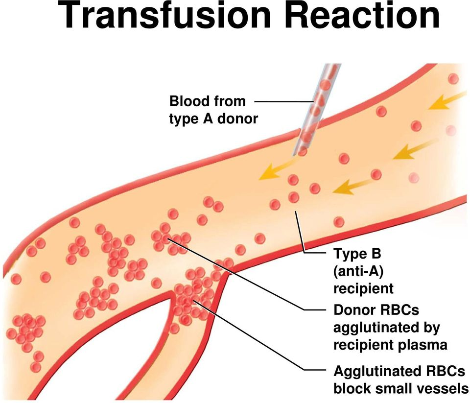 Donor RBCs agglutinated by recipient