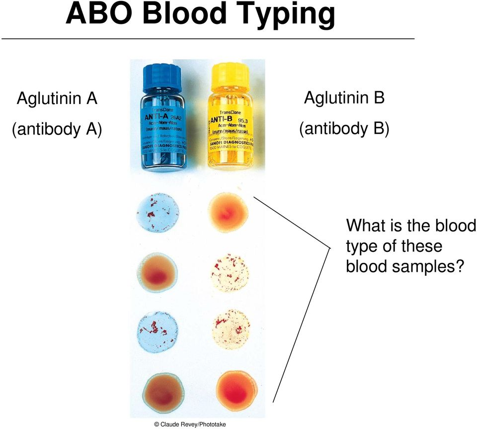 (antibody B) What is the blood