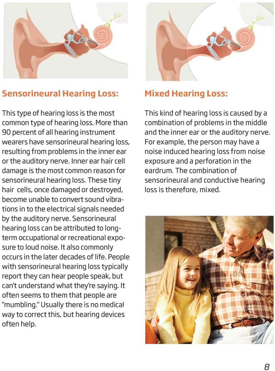 Inner ear hair cell damage is the most common reason for sensorineural hearing loss.