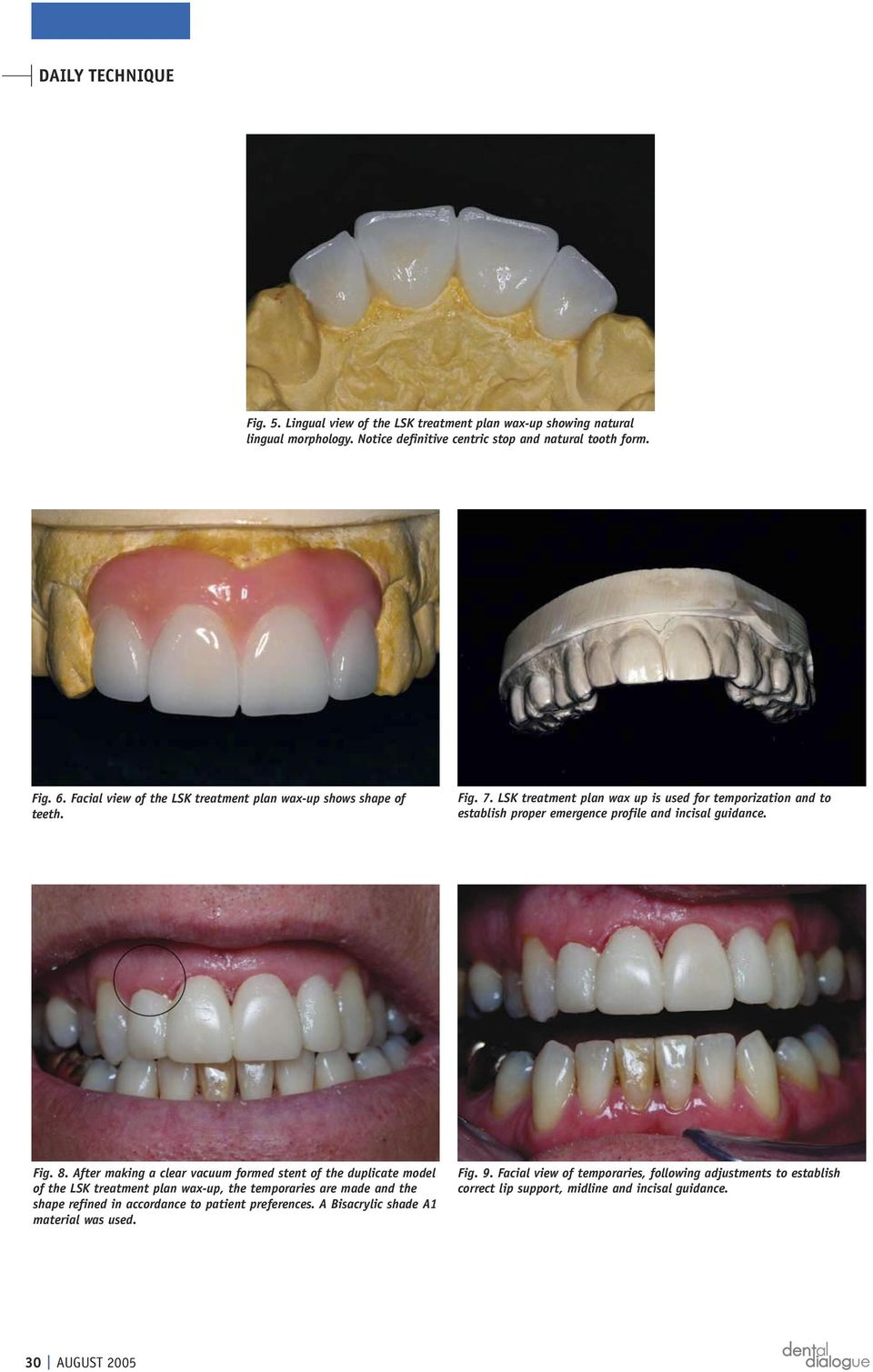 LSK treatment plan wax up is used for temporization and to establish proper emergence profile and incisal guidance. Fig. 8.