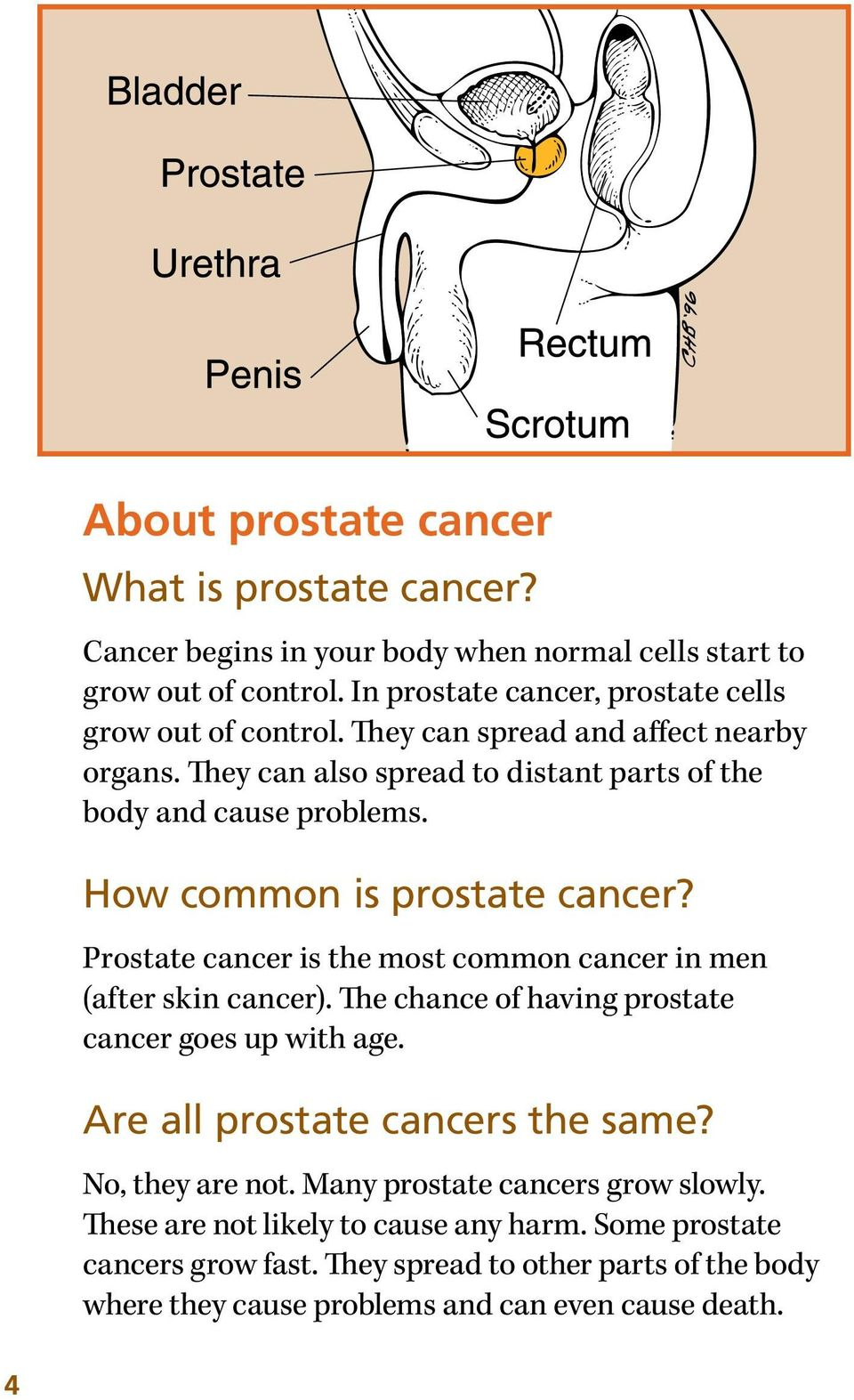 How common is prostate cancer? Prostate cancer is the most common cancer in men (after skin cancer). The chance of having prostate cancer goes up with age.