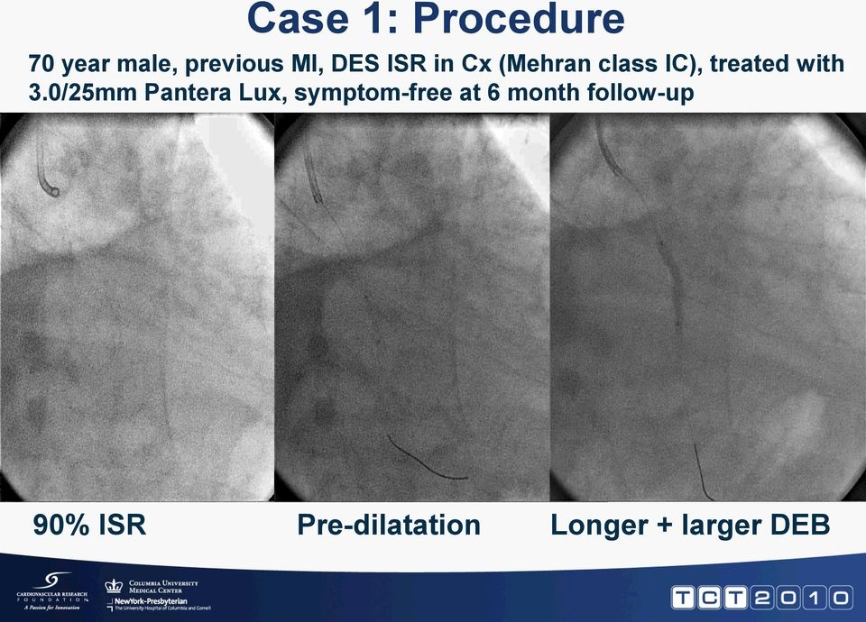 0/25mm Pantera Lux, symptom-free at 6 month