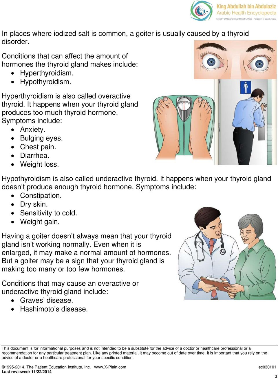 Weight loss. Hypothyroidism is also called underactive thyroid. It happens when your thyroid gland doesn t produce enough thyroid hormone. Symptoms include: Constipation. Dry skin.
