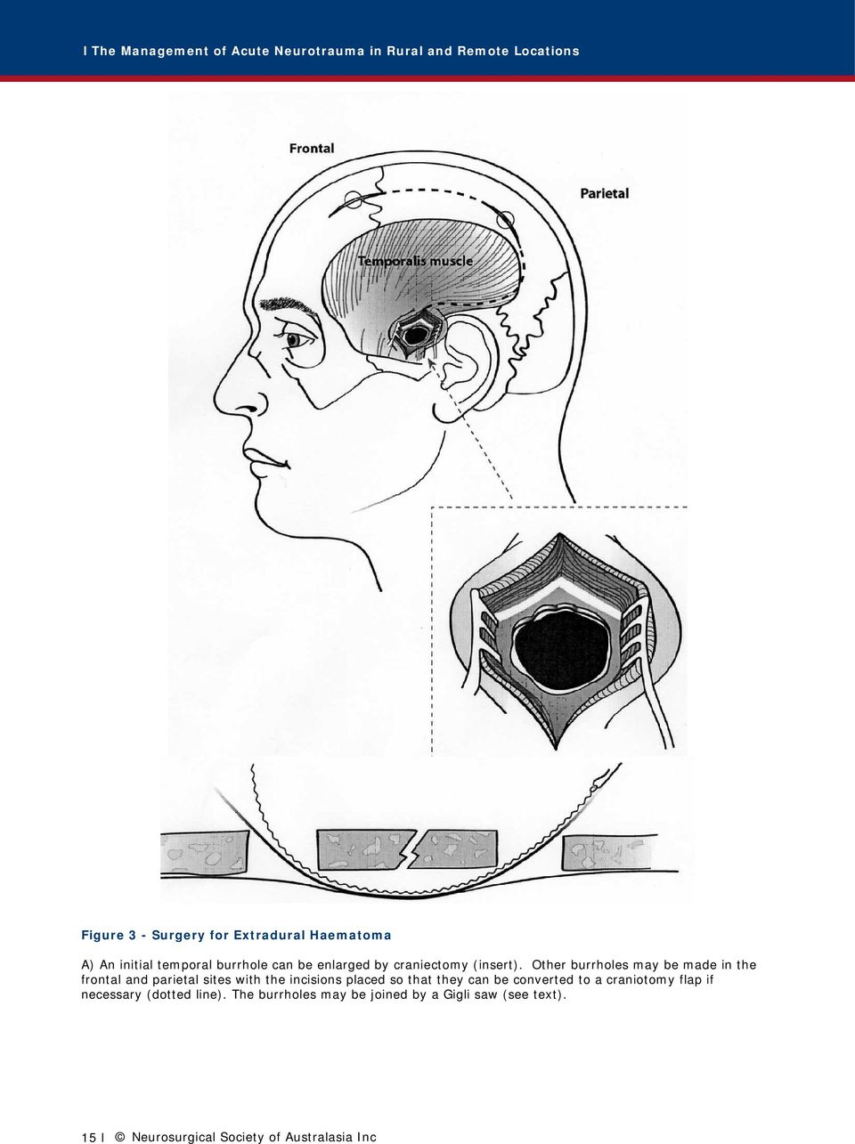 The Management of Acute Neurotrauma in Rural and Remote Locations A