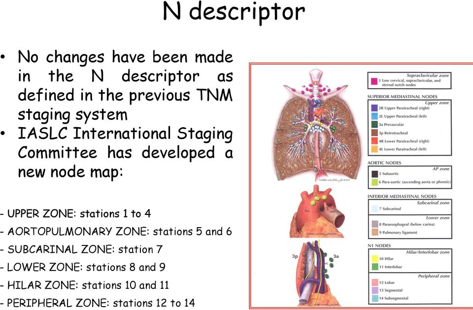 ZONE: stations 1 to 4 - AORTOPULMONARY ZONE: stations 5 and 6 - SUBCARINAL ZONE: station 7 -